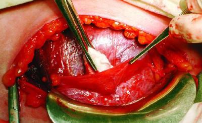 Кесарево сечение - показания и противопоказания, методика проведения, осложнения