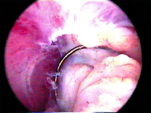 Большие трудности связаны с удалением полипа эндометрия в области устьев...