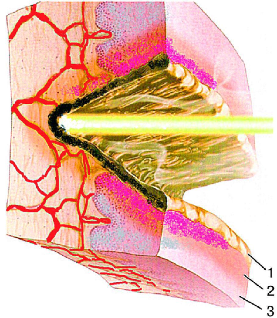 Электрохирургия фото