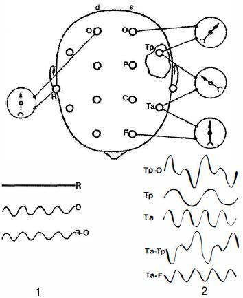 Схема регистрации ЭЭГ при